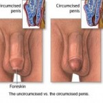 Circumcision Surgery For Adults