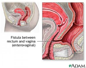 Colon Bladder Fistula Surgery http://www.bangaloregenesishospital.com/fistula-surgery-in-bangalore/